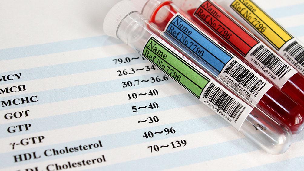 まずは自分が不妊症か知るための不妊検査の費用を確認!