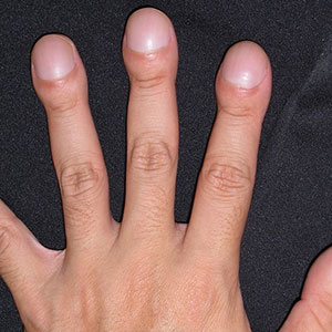6.指先まで曲がった爪が覆う