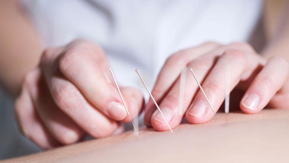 鍼(はり)治療とは?鍼を刺しても痛くないの?