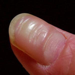 3. 爪の縦筋と横溝