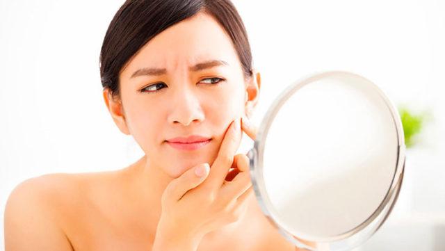 ニキビ・ニキビ跡を治す基礎化粧品はどれが人気?本当に効くアイテムは?