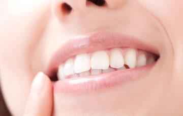 【プロ執筆】自宅で簡単に歯を白くする方法は?ホワイトニングの知識と技術