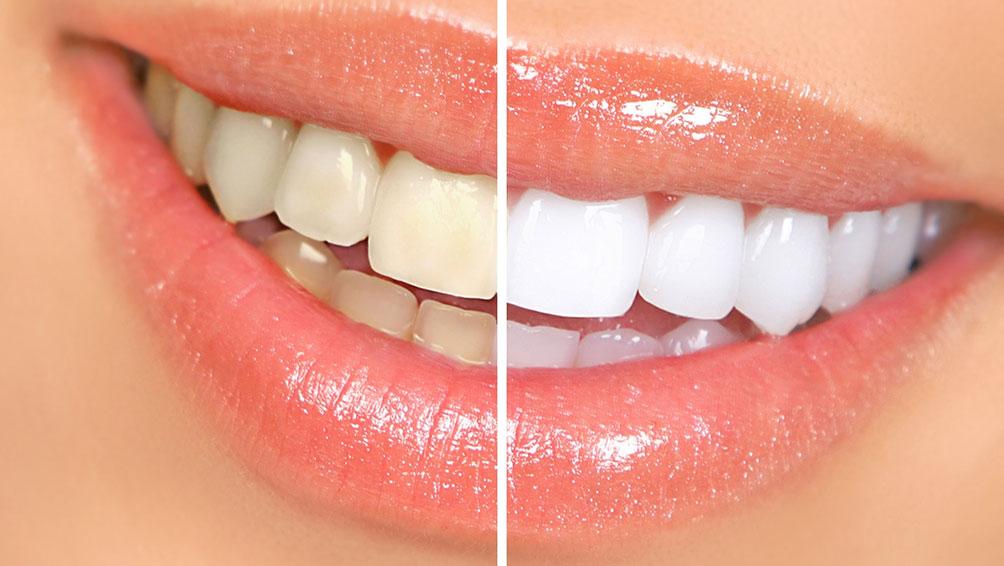 歯はどうして黄ばむの?