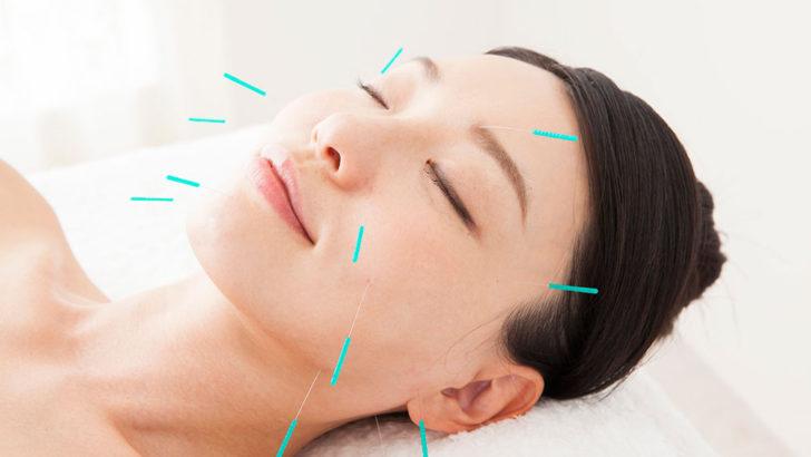 美容鍼にはどんな効果がある?デメリットや値段、ベストな頻度まで徹底解説!
